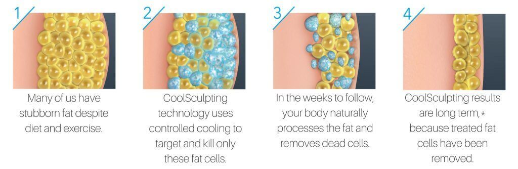 Coolsculpting Chicago – Freeze Your Fat with Riverside Medical