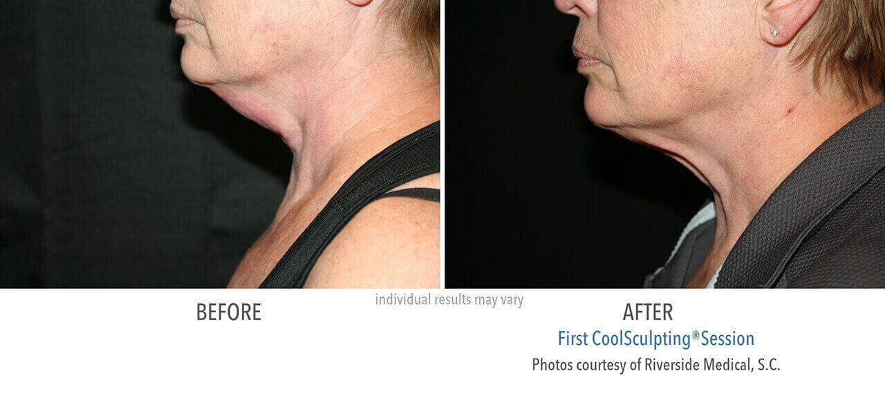 coolsculpting-before-and-after-riverside-medical-chicago-1