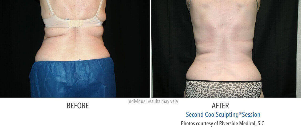 coolsculpting-before-and-after-riverside-medical-chicago-3