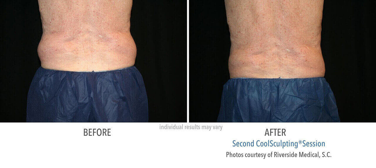 coolsculpting-before-and-after-riverside-medical-chicago-6