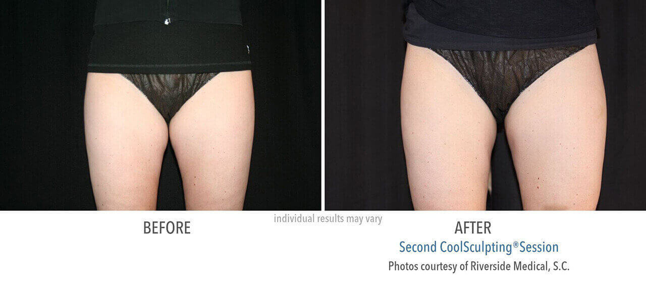 coolsculpting-before-and-after-riverside-medical-chicago-7